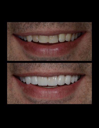 smile 1 002